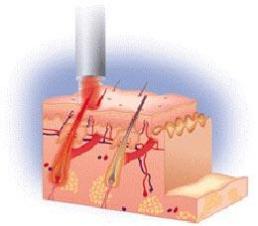 mode d'action de l'épilation laser